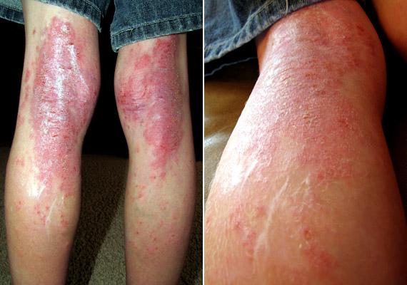 nagy piros foltok viszketnek a gyomorban bőrirritációra, kenőcs pikkelysömörre