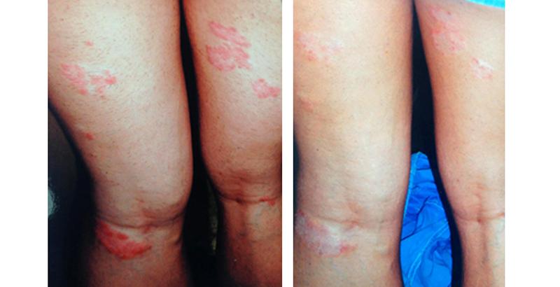 pikkelysömör fotó kezelés előtt és után