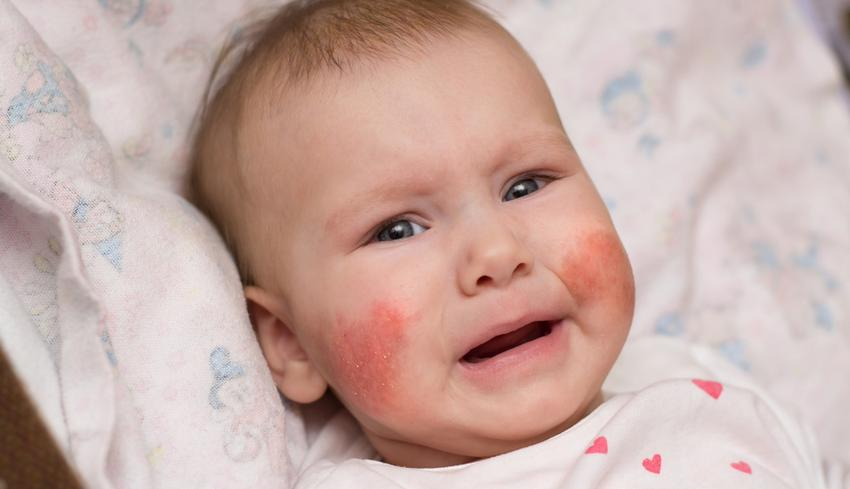vörös foltok jelentek meg a fején viszketés és hámlás hogyan kell kezelni a pikkelysömör fejben otthon