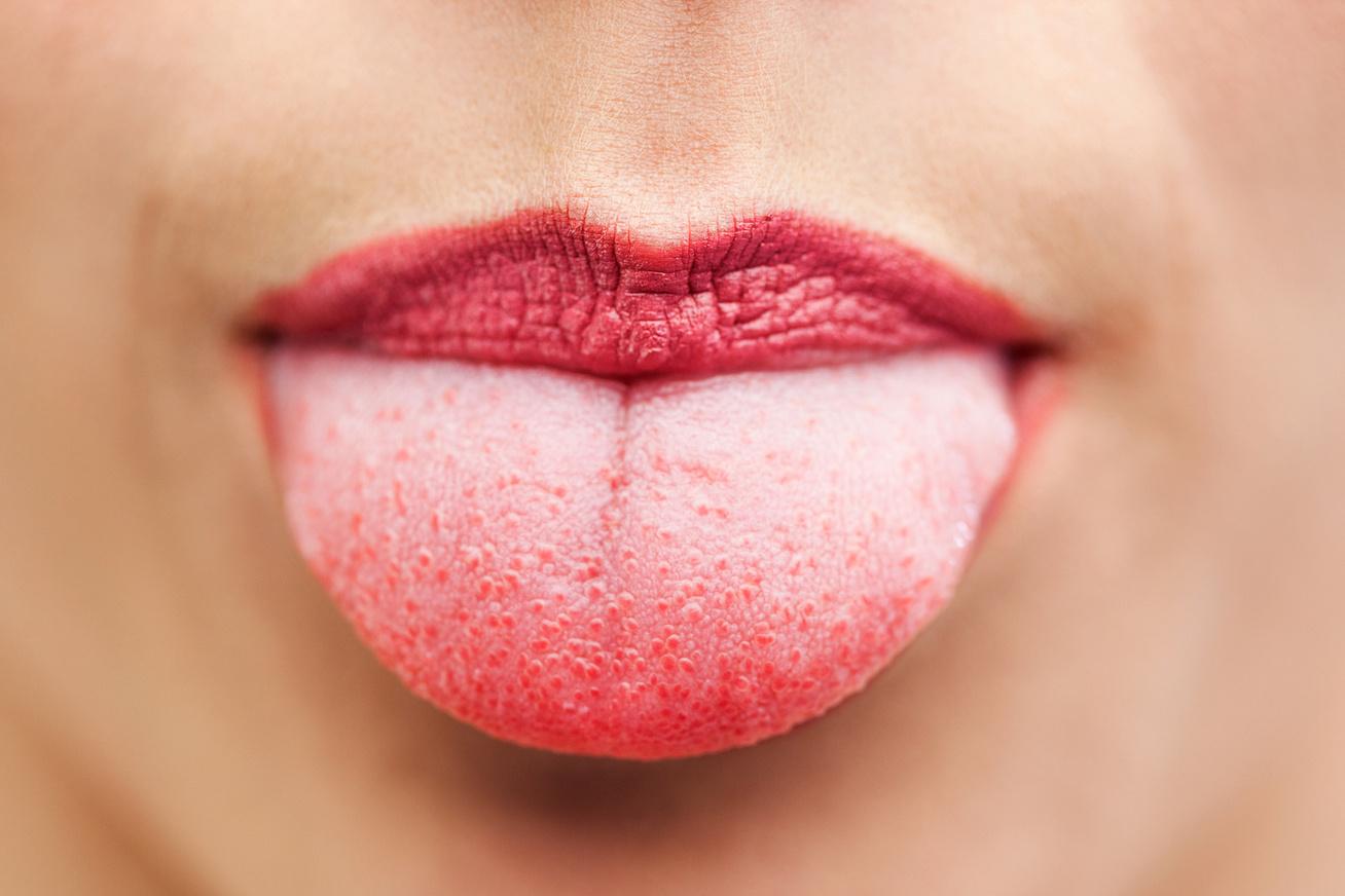 vörös viszkető foltok az ajkak sarkában