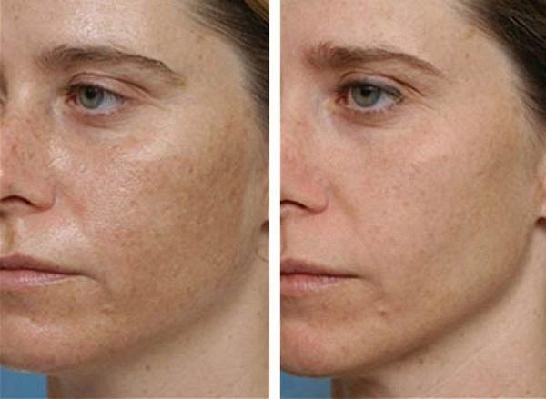 hogyan mossa meg a vörös bőrt a foltoktól pikkelysömör a fülekben