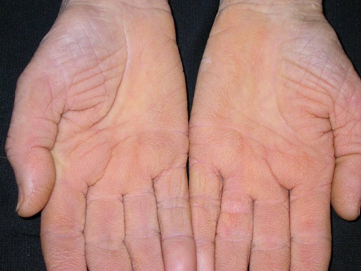 vörös foltok a kéz fotó bőrén