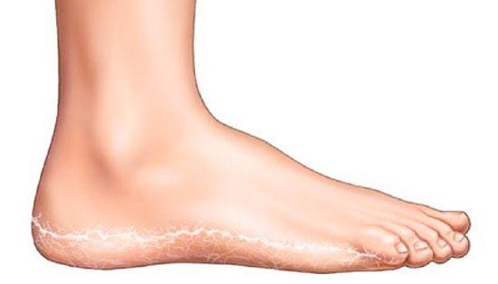aludj a láb piros foltján kenőcs metotrexát pikkelysömör vélemények