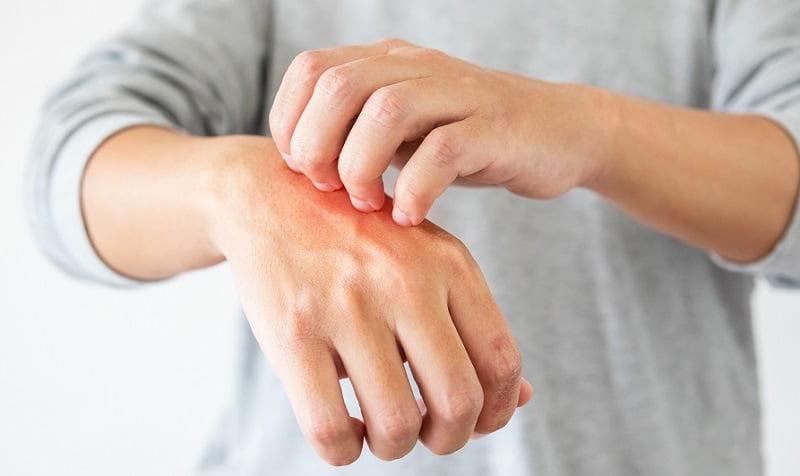 kurkuma haszna pikkelysömör kezelésére