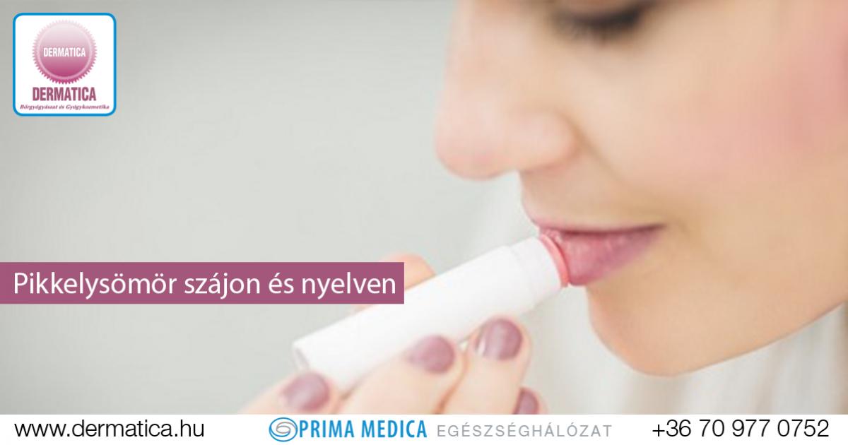 hogyan kell kezelni a pikkelysömör szájban vörös foltok az alkaron pikkelyesek