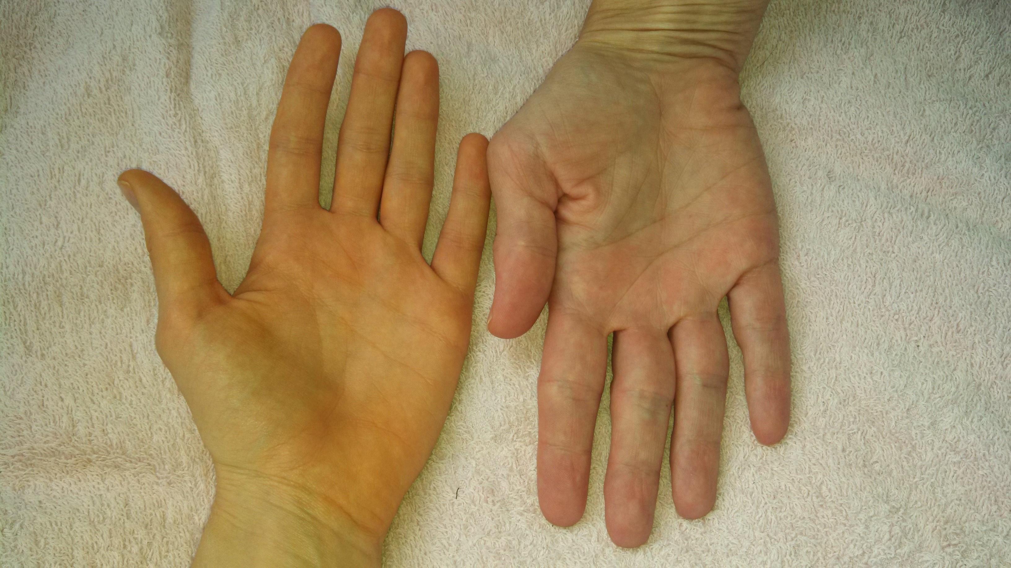 hogyan mossa meg a vörös bőrt a foltoktól