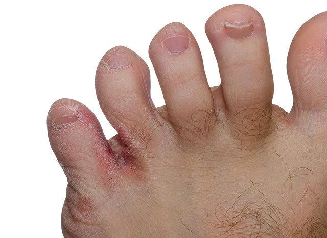 hogyan kell kezelni a pikkelysmrt a fenekn piros foltok a lábakon edzés után