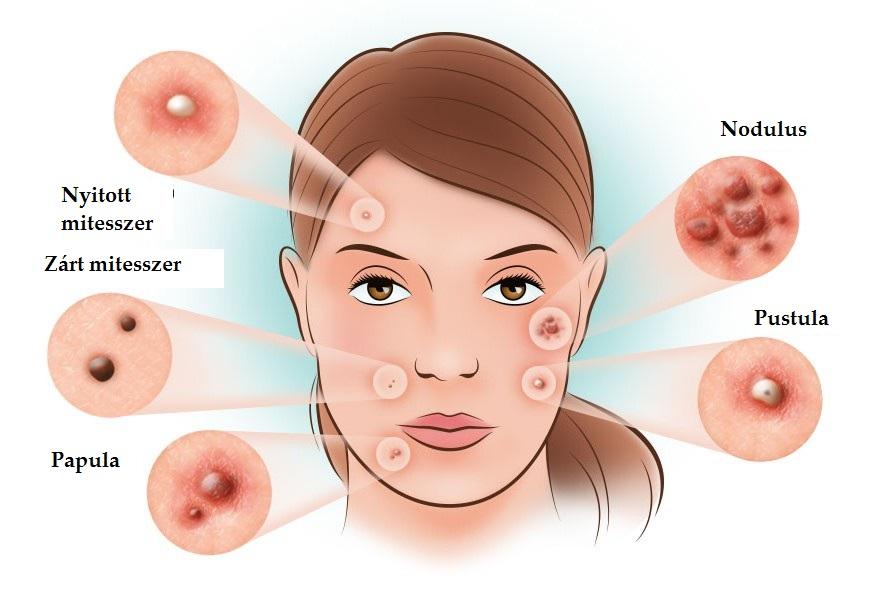 vörös dudor az arcon kenőcs pikkelysömör kezelésére otthon