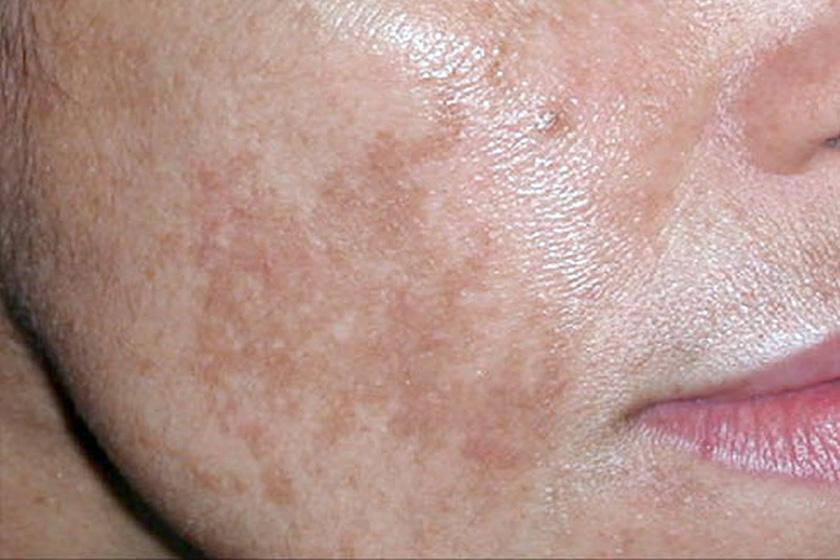 hogyan lehet otthon gyorsan eltávolítani a vörös foltokat az arcon Amerikai pikkelysömör gyógyszer