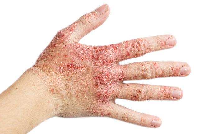 egy nagy vörös folt jelent meg a hasán vörös foltok a karon és a testen, valamint viszketés