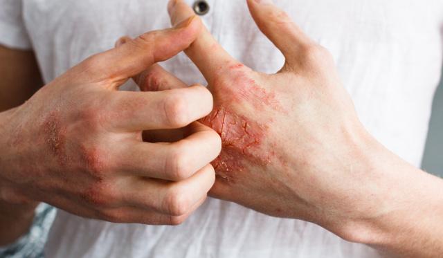 vörös foltok a testen és viszketés forróságtól