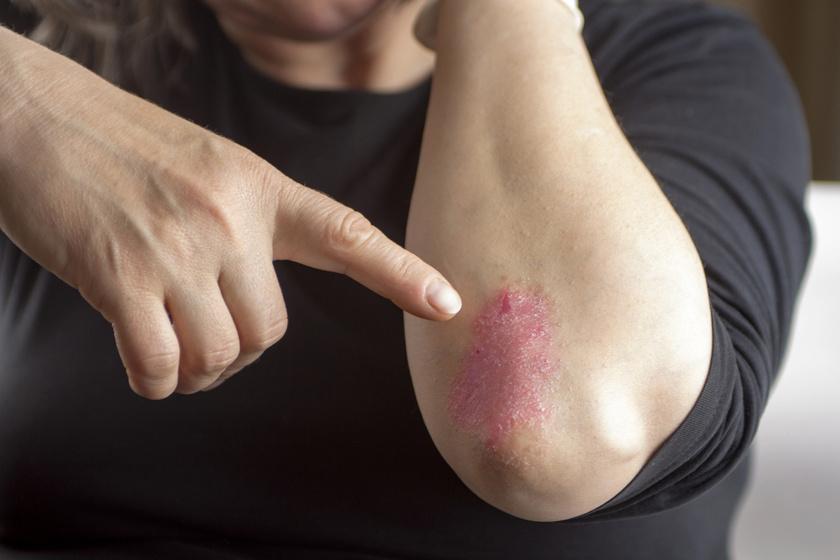 vörös foltok jelentek meg a könyökön és viszketnek pikkelysömör kezelése on-klinikán
