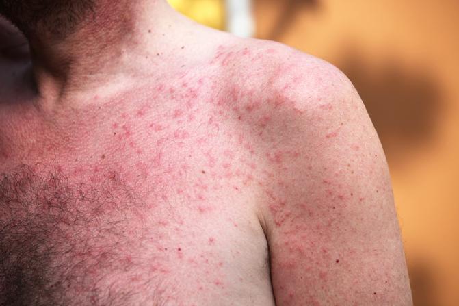 mit jelentenek a vörös foltok a kezeken pikkelysömör kezelés egy magyarországi gyógyfürdőben