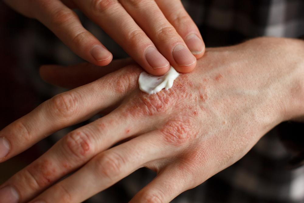 pikkelysömör mit kell tenni, hogyan kell kezelni láb pikkelysömör otthoni kezels