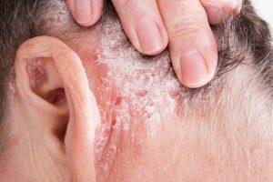 Pikkelysömör akupresszúra kezelése