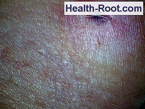 ahol a pikkelysömör külföldön kezelik vörös foltok a bőrön vérzéses