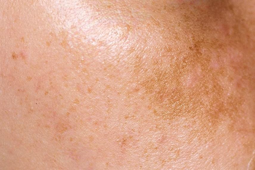 hatékony gyógymód a szőrös pikkelysömör ellen vörös foltok a bőrön a forró víz hatására