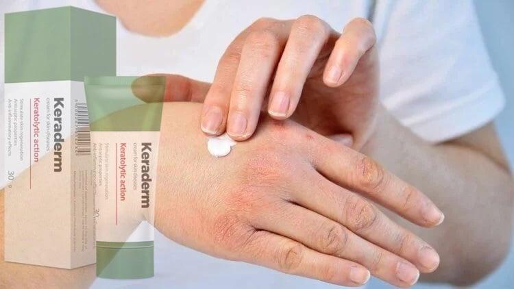 gyógyszerek, amelyek pikkelysömör megismétlődését okozzák