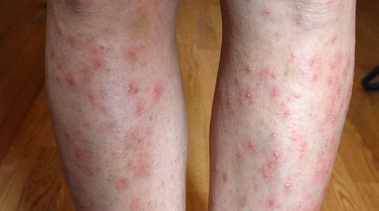 rózsaszínű foltok piros pontokkal a lábakon