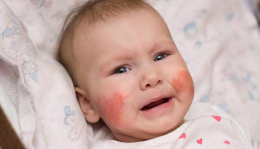 az arcon vörös folt az ajak alatt