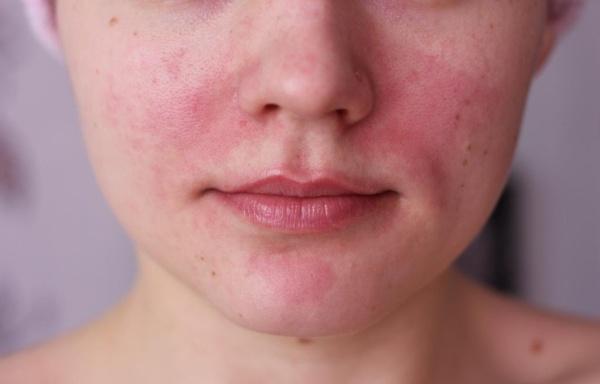 a homlokán vörös foltok hámozódnak