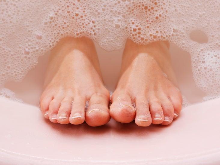 pikkelysömör és kezelése népi a láb bőrén a vörös folt hámlik