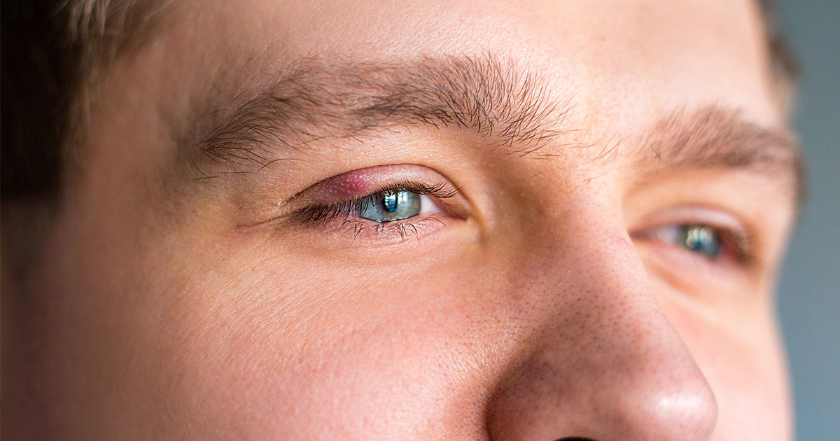 a szemhéjon pikkelysömör hogyan kell kezelni