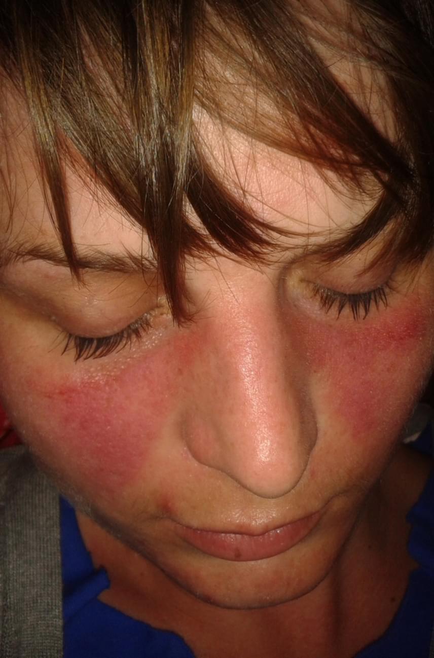 vörös foltok az arcon férfiaknál