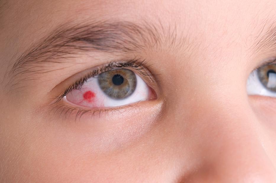 Piros foltok a szemhéjon - Tünetek