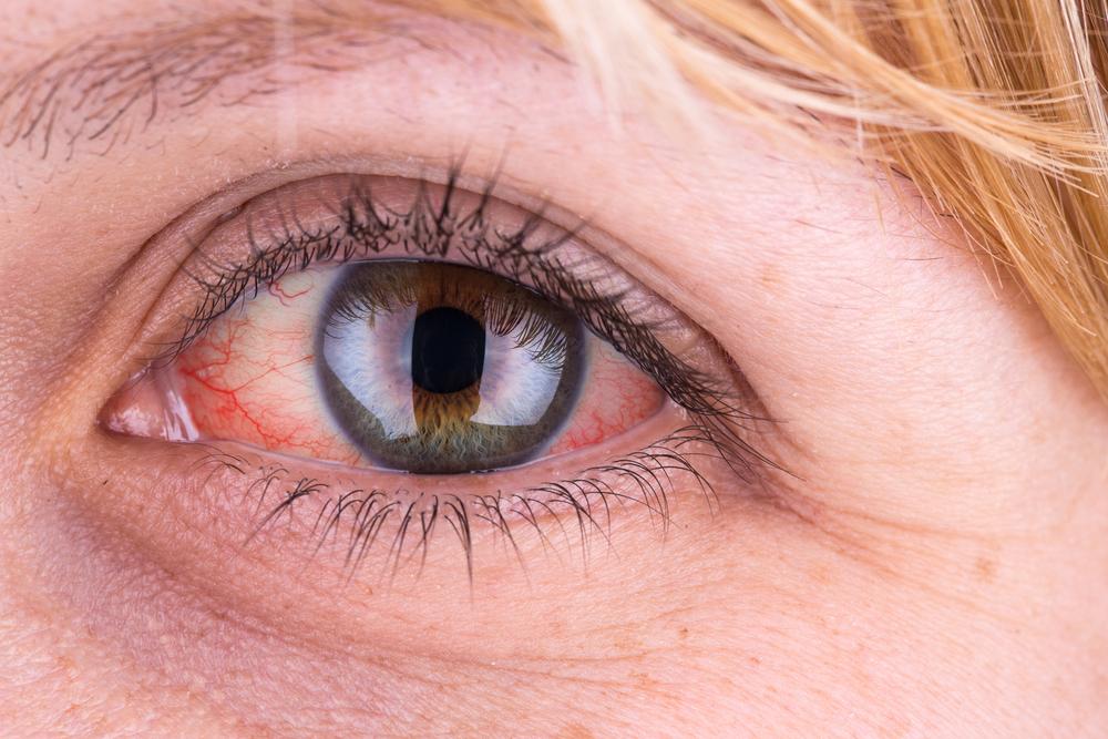 a szem alatt vörös folt viszket és duzzad