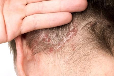vörös foltok és hámló fejbőr kezelés