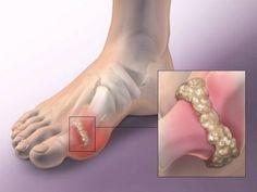 bőrsapka kezeli a pikkelysömör antibiotikus kezelés pikkelysömörhöz