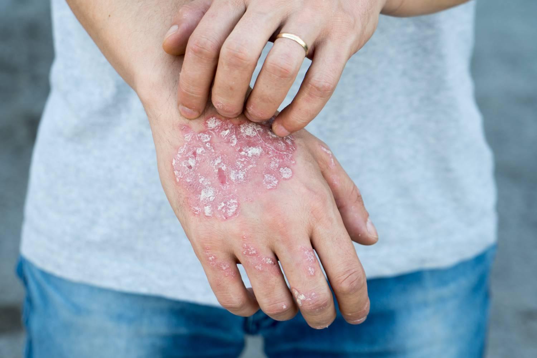pikkelysömör kezelése a fejen és a testen vörös foltok a bőrön a forró víz hatására