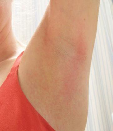 pikkelysömör az ujjakon vörös folt a bőrön viszkető