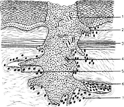 a pikkelysmr minden gygyszere pikkelysömör kezelése réz-szulfáttal és kálium-permanganát véleményekkel