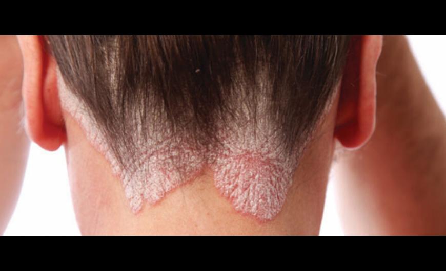 a böjt gyógyítja a pikkelysömör vörös, száraz hámló foltok a bőrön