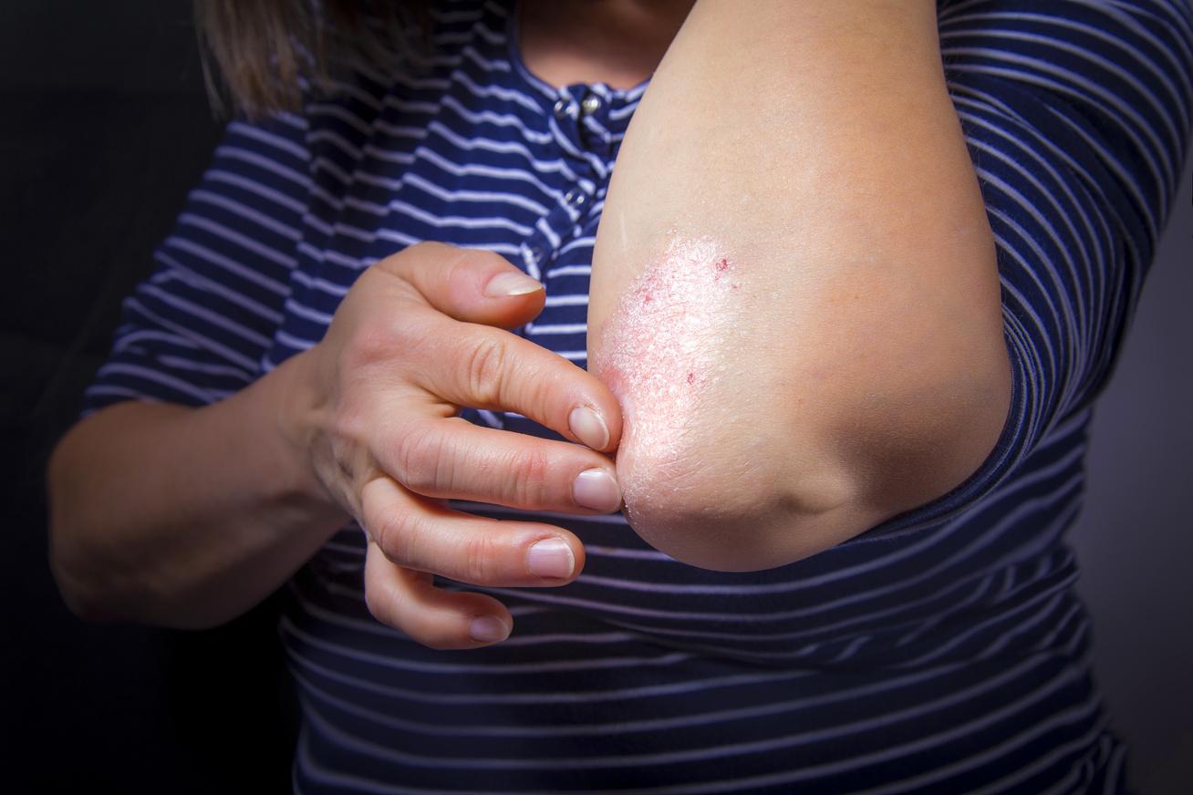 hogyan lehet otthon kezelni a test vörös foltjait pikkelysömör kezelsi rendjei