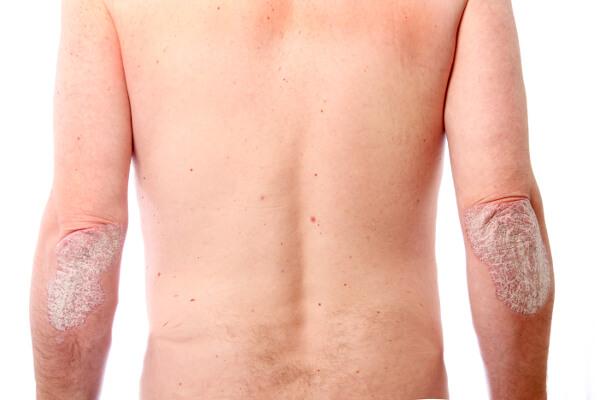 Psoriatic arthritis diet and exercise - Marco borges dieta