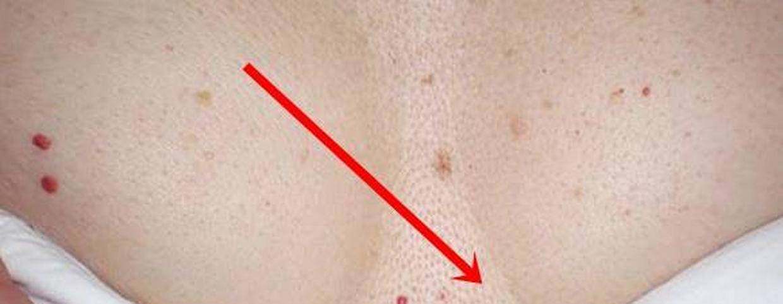hogyan lehet eltávolítani a fényképen a piros foltokat