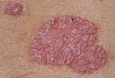 pikkelysömör kezelése immunmodulátorokkal vélemények