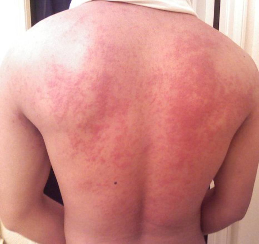 vörös foltok a testen és a nyakon viszketnek