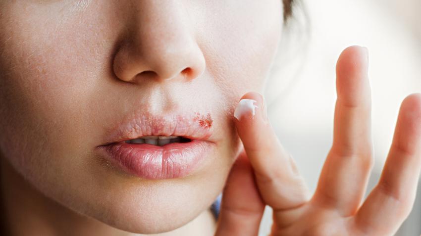 Herpesz az orron - Mi a teendő?