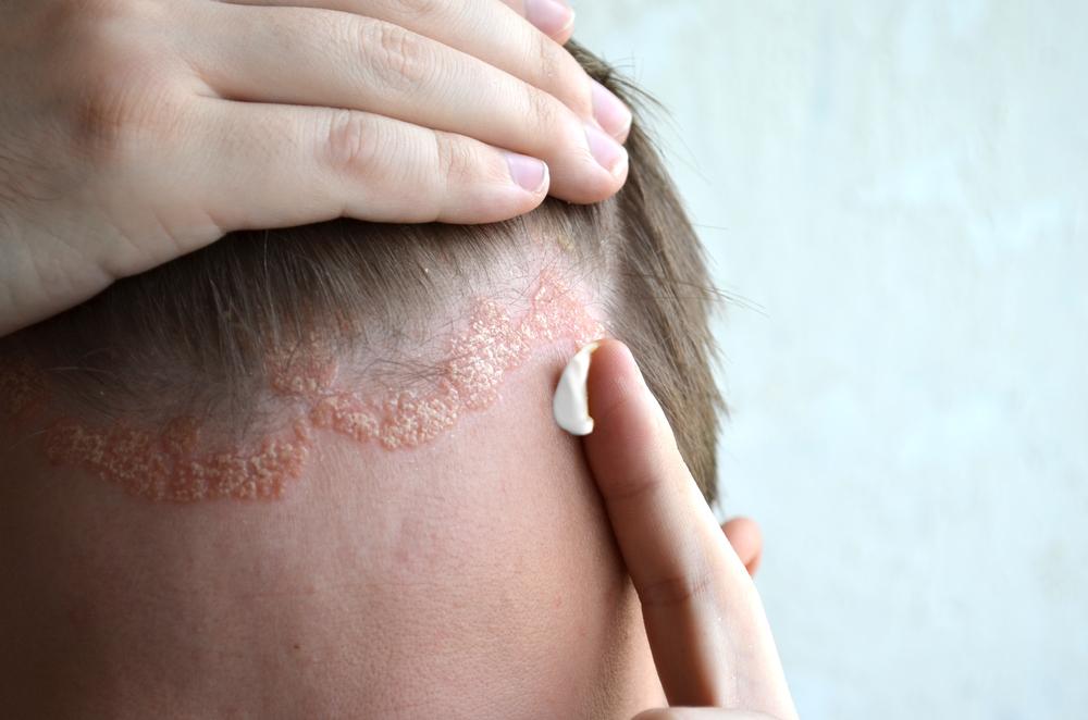 a pikkelysömör súlyosbodása az arc kezelésén)