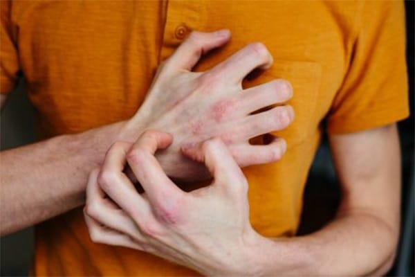 hatékony krém pikkelysömörre a tenyéren egészségesen élni, hogyan kell kezelni a pikkelysömör