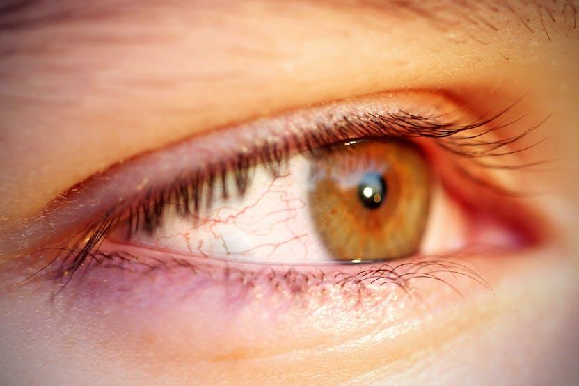 hogyan lehet eltávolítani a vörös foltot a szemről