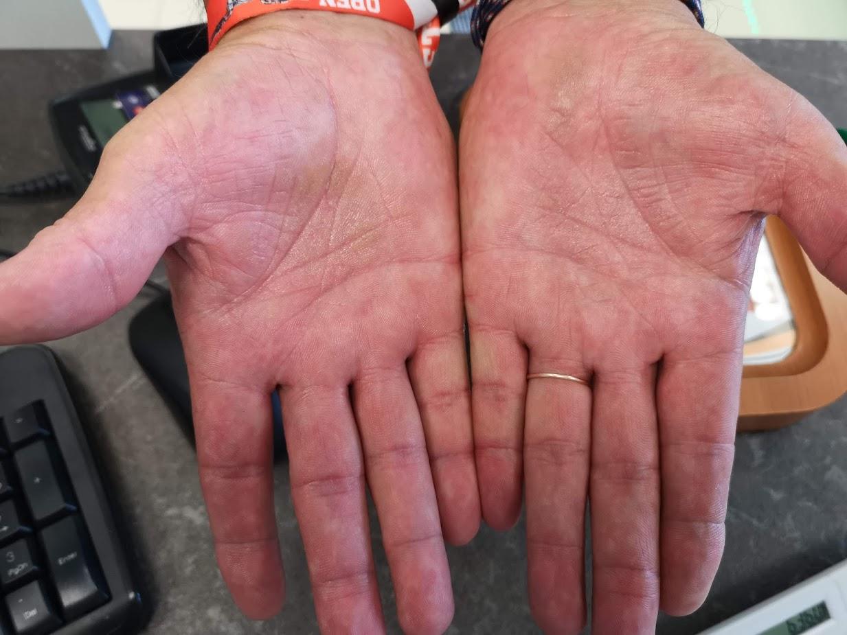 viszkető ujj a kézen vörös foltok