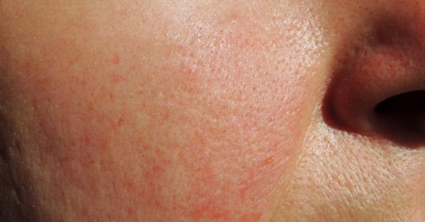 hogyan kell kezelni a homlok vörös foltjait