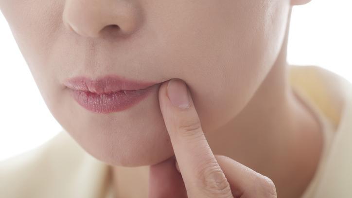 hogyan lehet eltávolítani a vörös foltokat az ajak herpesz után vörös foltok az ajkak körül az arcon