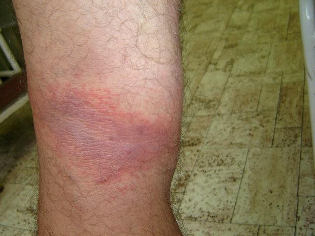 vörös és kék foltok a lábakon