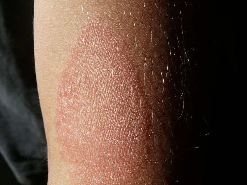 a karokon a könyök felett vörös foltok vannak hogyan kell kezelni a nyak vörös foltját
